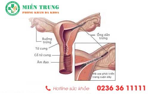 Nguyên nhân gây tắc vòi trứng và cách điều trị hiệu quả